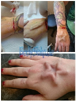 Stern Implantat Bodymodification Galerie - professionell bodymodification und piercen-lernen.de